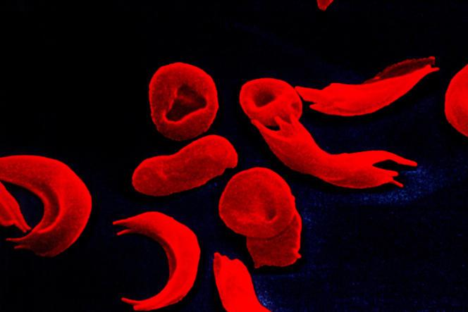 Globules rouges de patients atteints de drépanocytose.